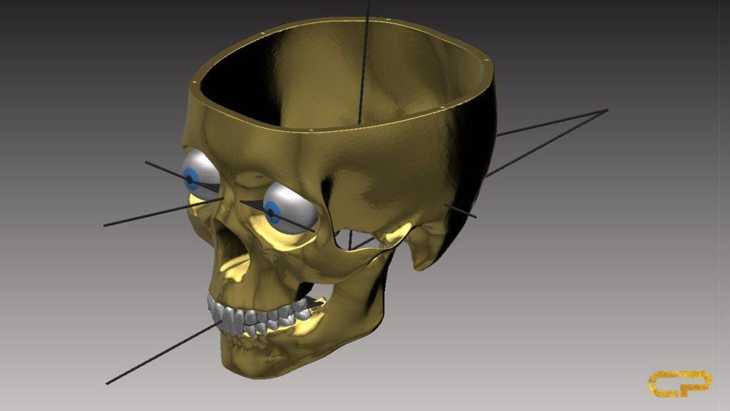 planung cranium dental Jig Harmonizer Cranioplan DASADent dental fräszentrum