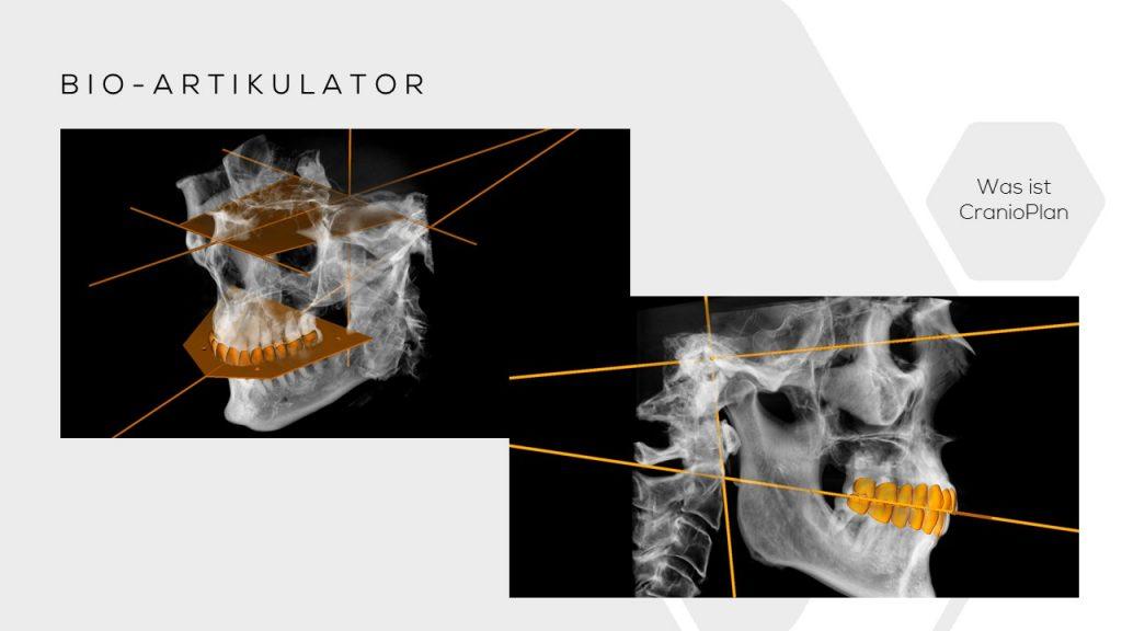 bio artikulator planung cranium dental Jig Harmonizer Cranioplan DASADent dental fräszentrum
