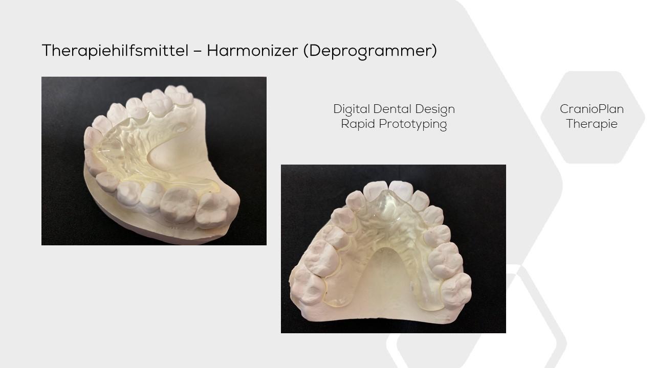 dental Jig OK Harmonizer Cranioplan DASADent dental fräszentrum