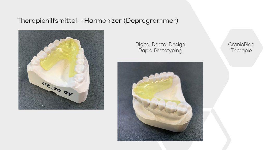 dental Jig Harmonizer Cranioplan DASADent dental fräszentrum