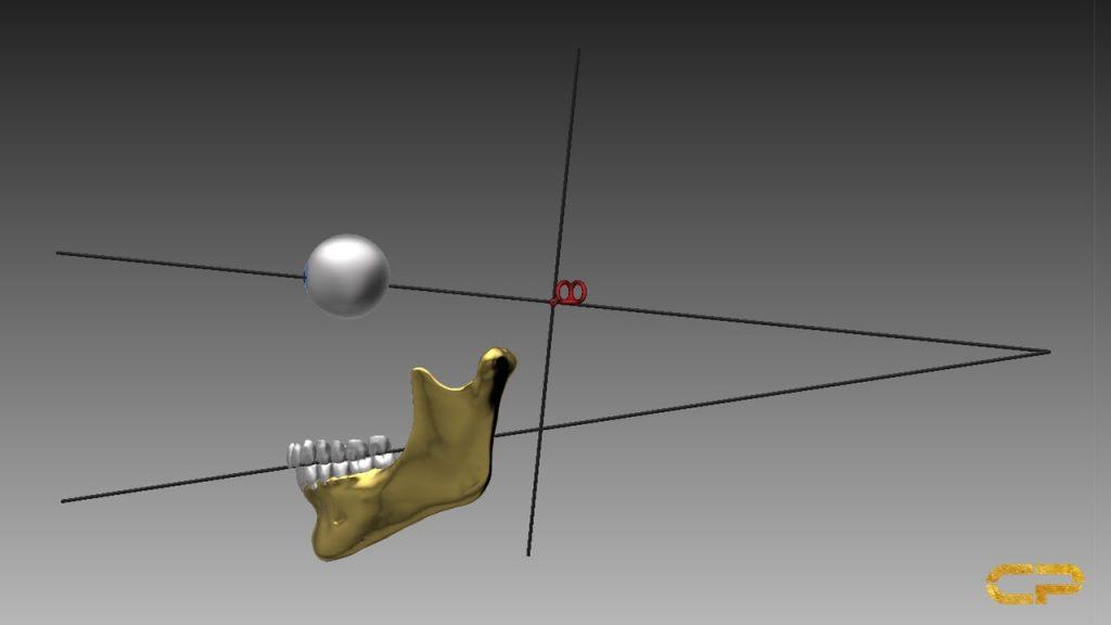 planung im cranium dental Jig Harmonizer Cranioplan DASADent dental fräszentrum
