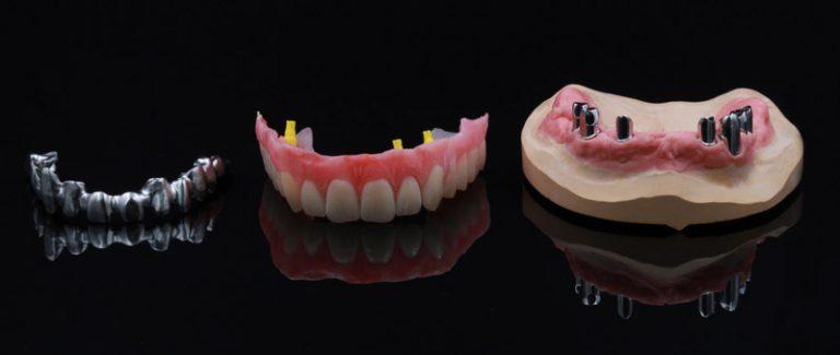 Teleskopprothese auf Implantaten vom dental Fräszentrum für digitale Zahntechnik