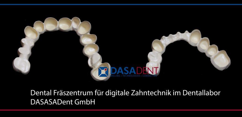 peek_teleksop_sekundaerteleskop_dental_fraeszentrum_fuer_digitale_zahntechnik