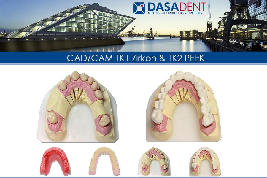 teleskop-restauration-fräszentrum-digital-zahntechnik-dasadent-dental-cad-cam-dentallabor-datentransfer-schnell-speed-24h-fertigu