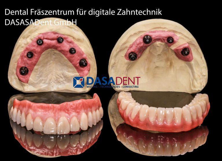 implantat_technik_straumann_dental_fraeszentrum_fuer_digitale_zahntechnik_teleskop_prothese_implantat_abutment_dasadent_fraeszentren_1600
